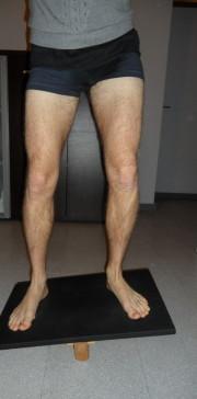 riabilitazione, ortopedica, riabilitazione ortopedica